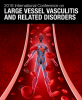 International Conference on Large Vessel Vasculitis and Related Disorders